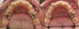 歯科 術前・術後 症例(A-1)