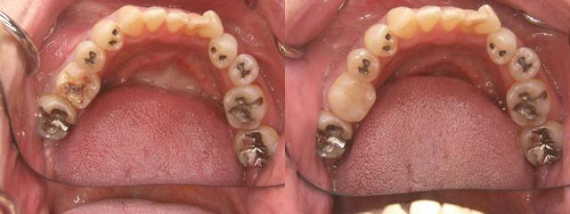 歯科 術前・術後 症例(B)