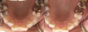 歯科 術前・術後 症例(C)