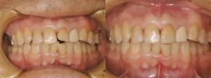 歯科 術前・術後 症例(D-1)