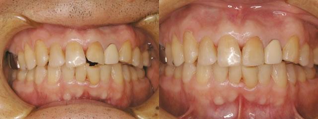 歯科 術前・術後 症例(D)