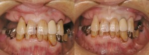 歯科 術前・術後 症例(E-1)