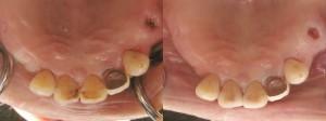 歯科 術前・術後 症例(E-2)
