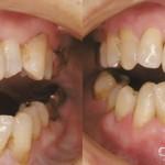 歯科 術前・術後 症例(F)