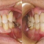 歯科 術前・術後 症例(G)